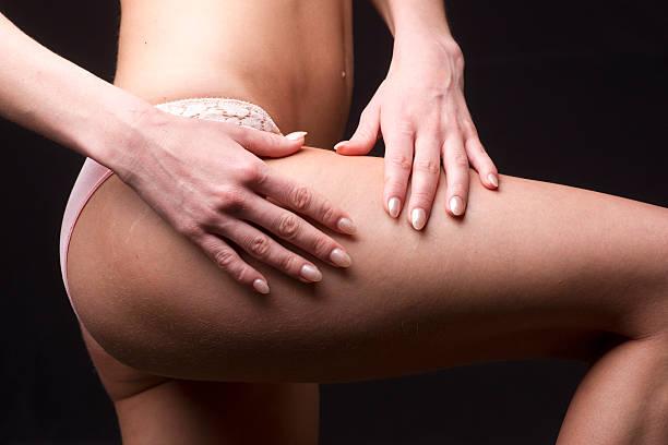 Cuisse femme cellulite